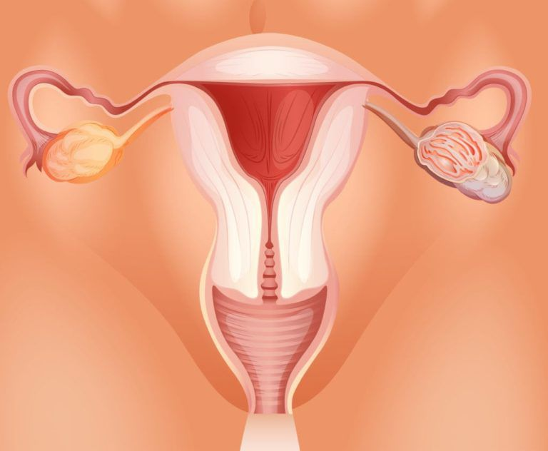 Ovarian tumor in woman illustration